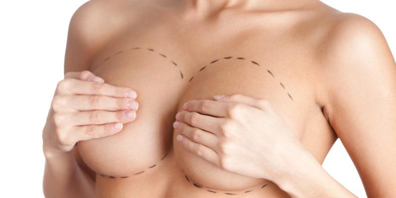 masectomie le sein ou la vie